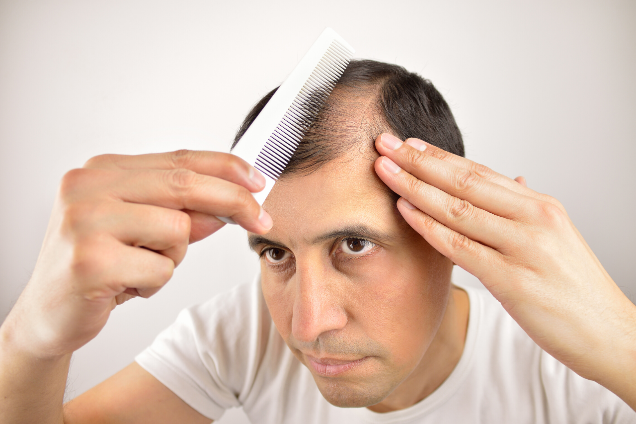 Androgenetic Alopecia Learn more about Androgen-related Hair Loss