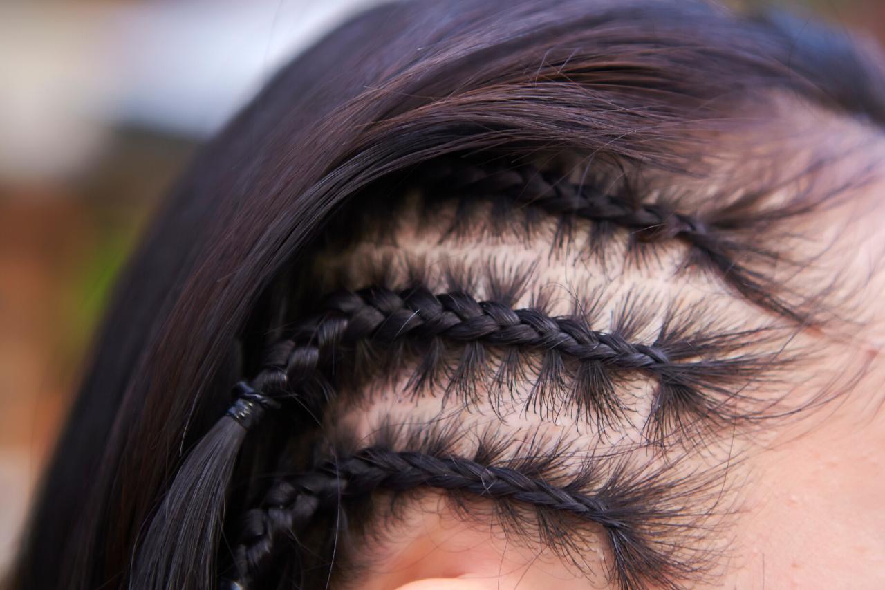 Scarring Alopecia Lichen, Lupus, Tinea Capitis, Traction Alopecia
