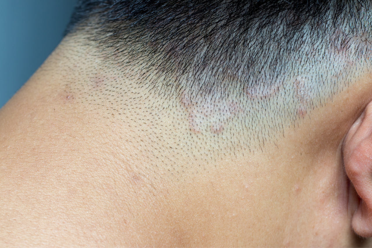Tinea capitis Fungal infections of the scalp