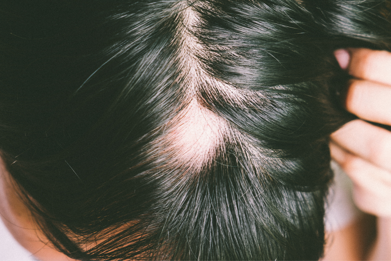 alopecia areata can affect women too