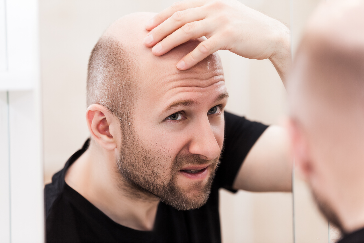 the causes of androgen-related hair loss