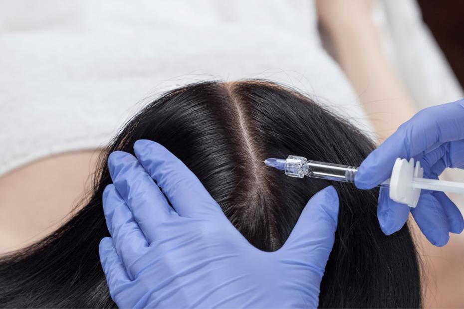 PRP Behandlung bei Haarausfall Kosten, Erfolge, Erfahrungen